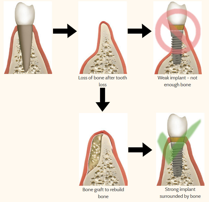 tooth-loss